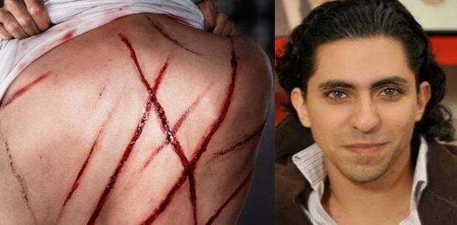 Raef Badawi fouetté - Crédit :mosaiquefm.net
